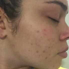 Multiple acne scars on cheek